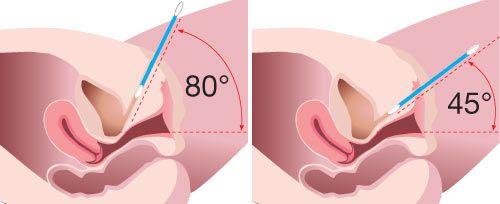 Inkontinencia: kinek segít a lézeres műtét? - HáziPatika